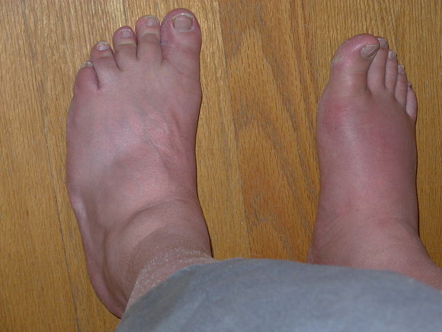 Difference Between Gout and Bursitis
