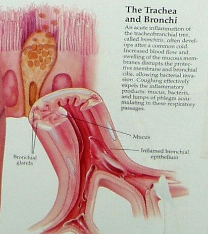 Difference between Bronchitis and Laryngitis