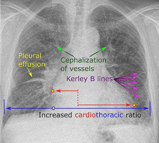 Difference Between Afib and CHF