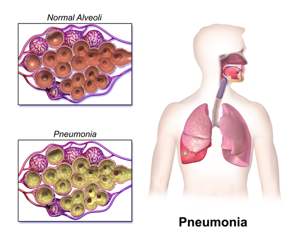 Difference Between COPD and Pneumonia