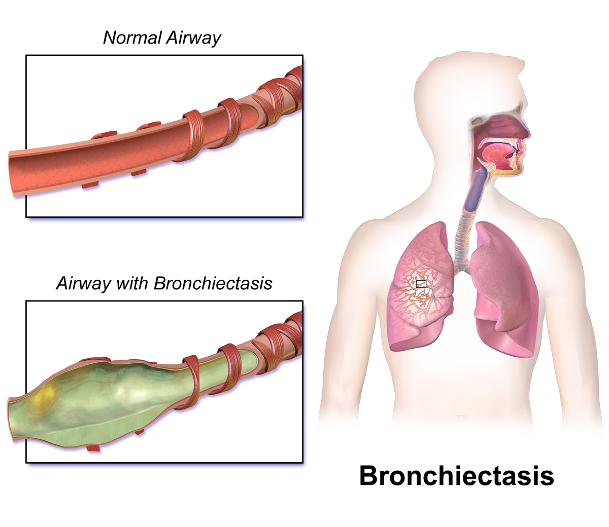 Difference between COPD and Bronchiectasis