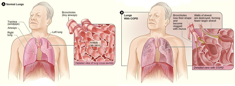 Difference between COPD and Pulmonary Fibrosis
