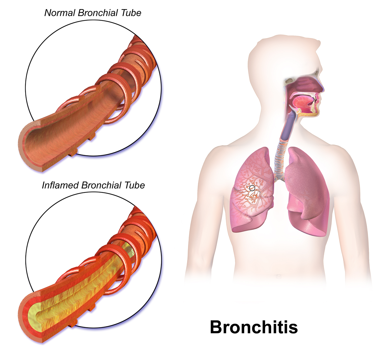 Difference Between Bronchitis and Acute Bronchitis