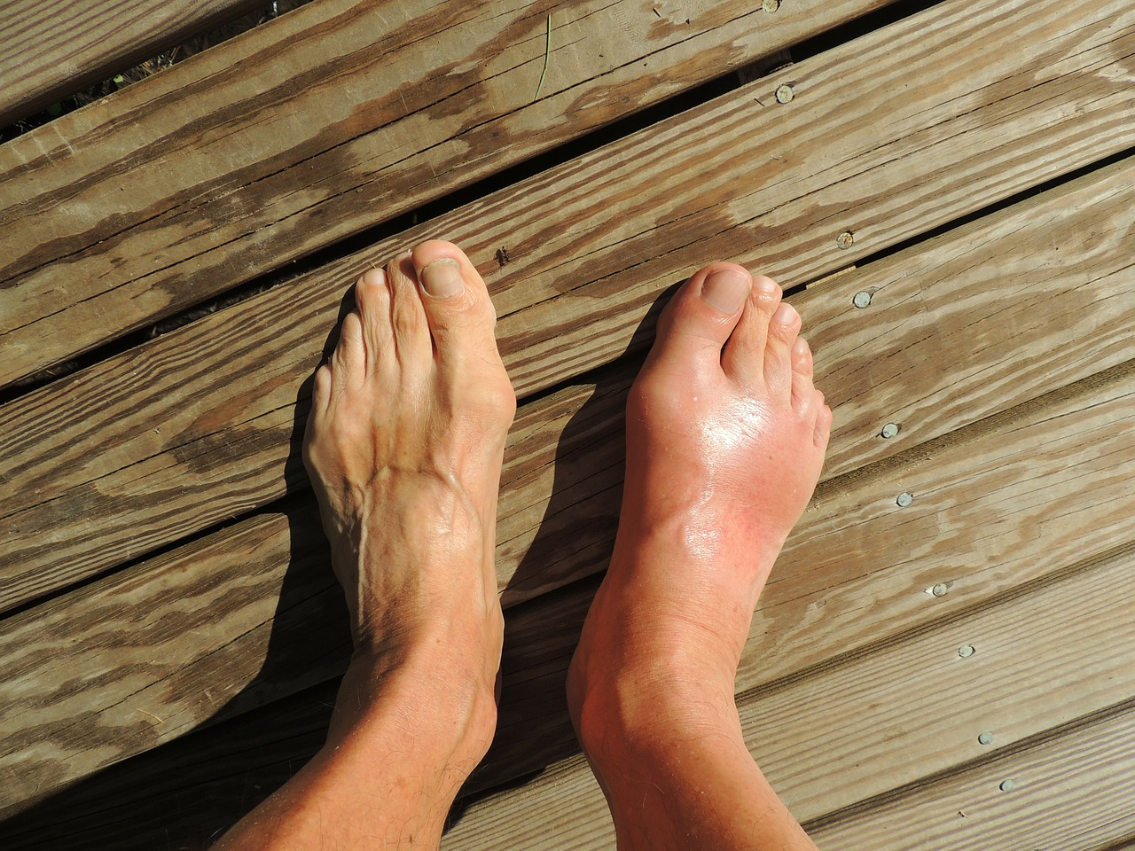 Difference Between Gout and Turf Toe