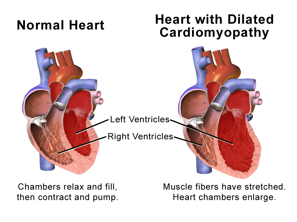Difference Between Cardiomyopathy and Heart Failure