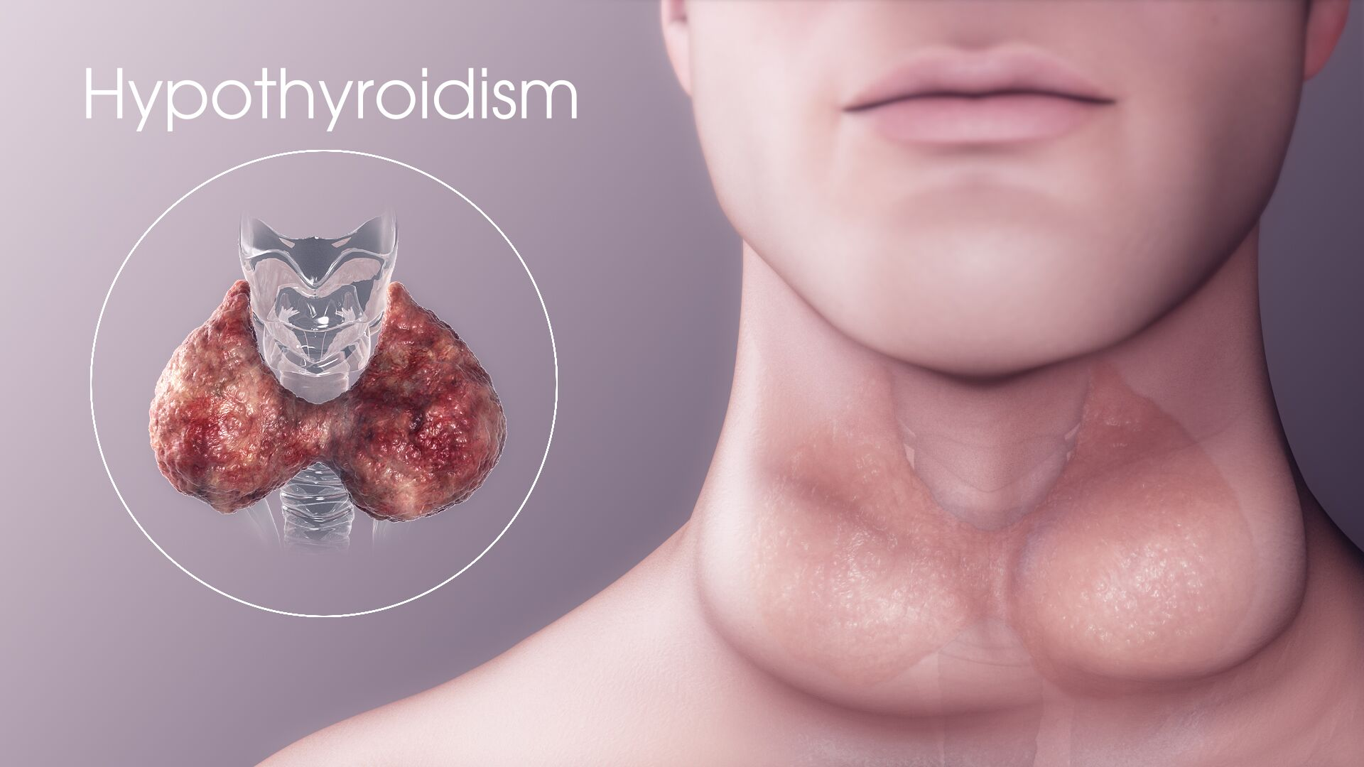 Difference Between Hashimoto's and Hypothyroidism