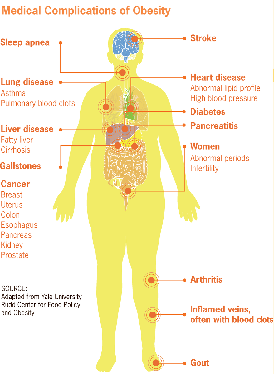 Difference Between Obesity and Morbid Obesity
