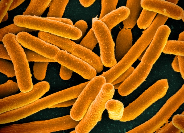 Difference Between E. Coli and Klebsiella