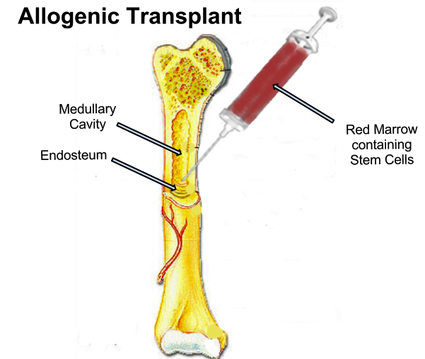 Difference Between Stem Cell Transplant and Bone Marrow Transplant