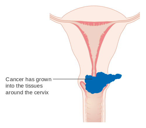 Difference Between Cervical Cancer and HPV
