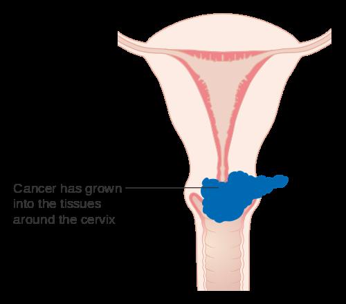 human papillomavirus in ovarian cancer paraziti stephen buhner