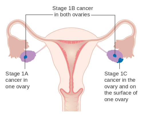 Difference Between Cervical Cancer vs Ovarian Cancer