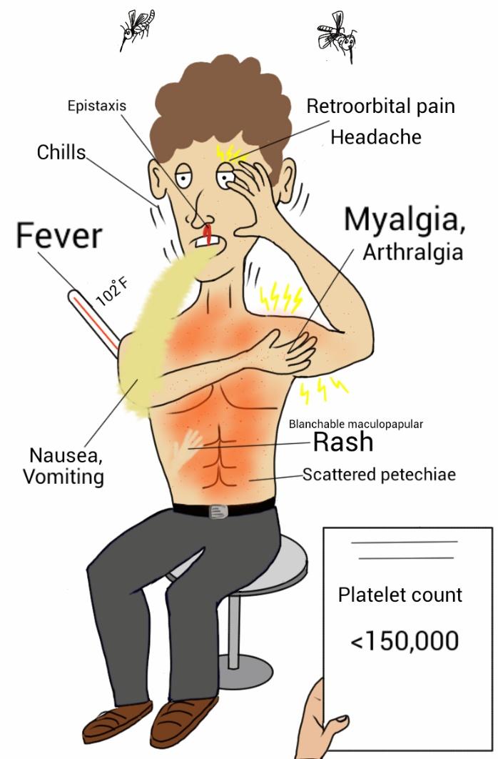 Difference Between Chikungunya and Dengue