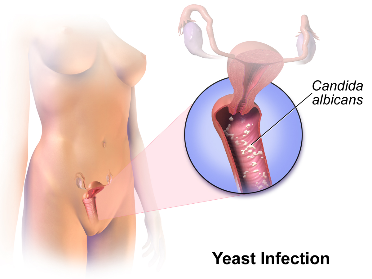 Difference Between Chlamydia and Yeast infection