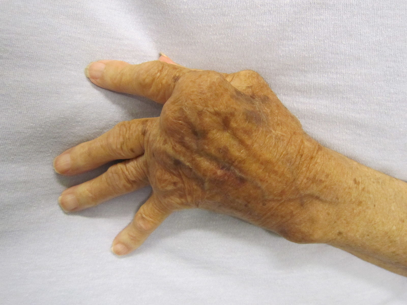 Difference Between Gout and Rheumatoid Arthritis