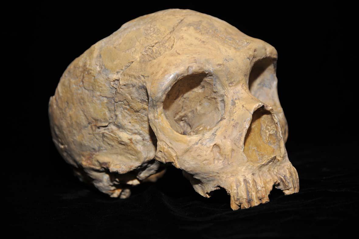 Difference Between Aborig inal Skull vs. Caucasian Skull
