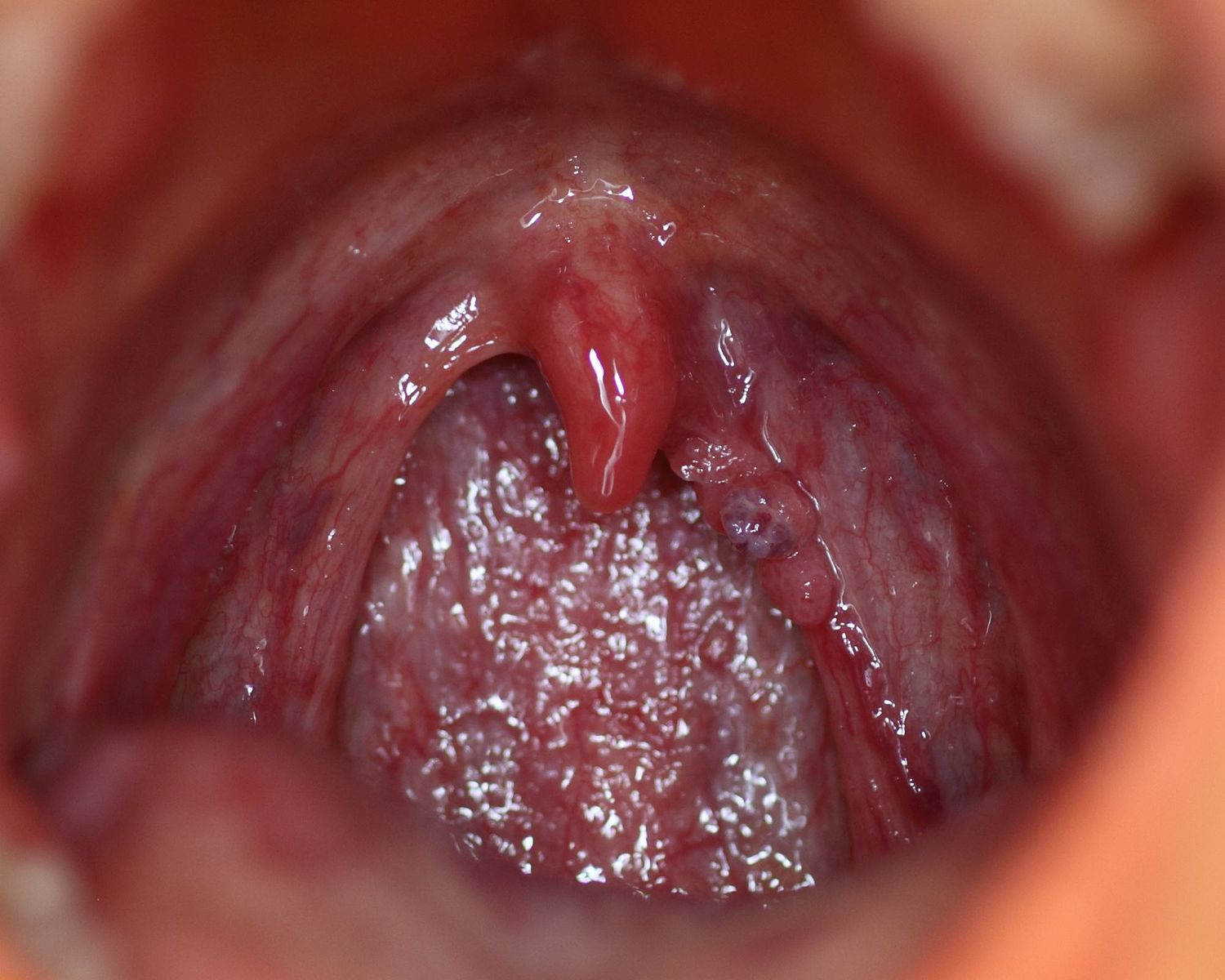 rectal papilloma virus
