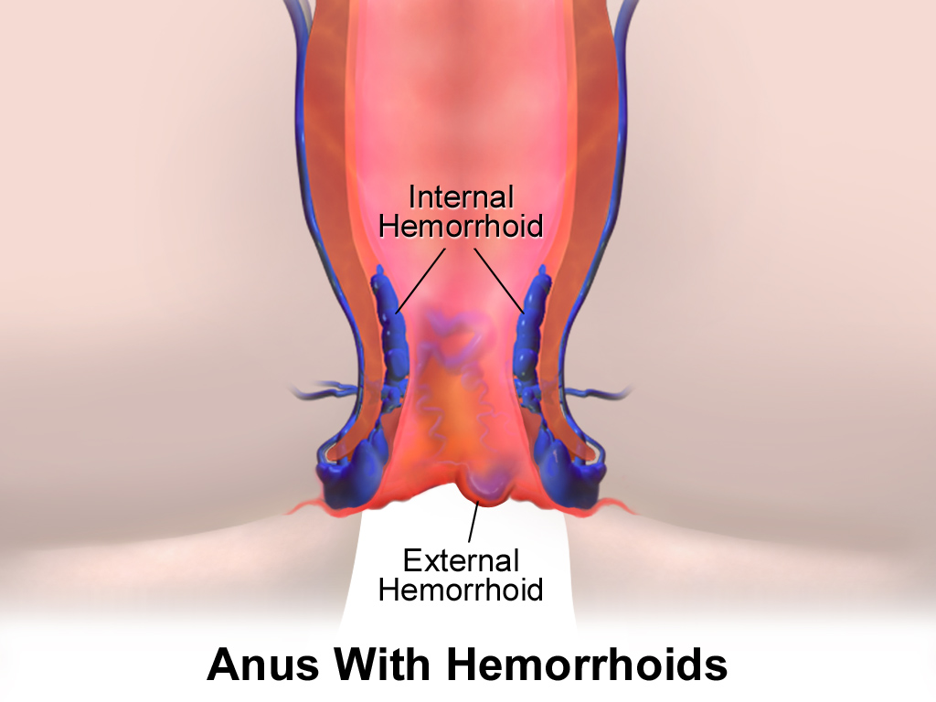 Difference Between Fistula and Hemorrhoids