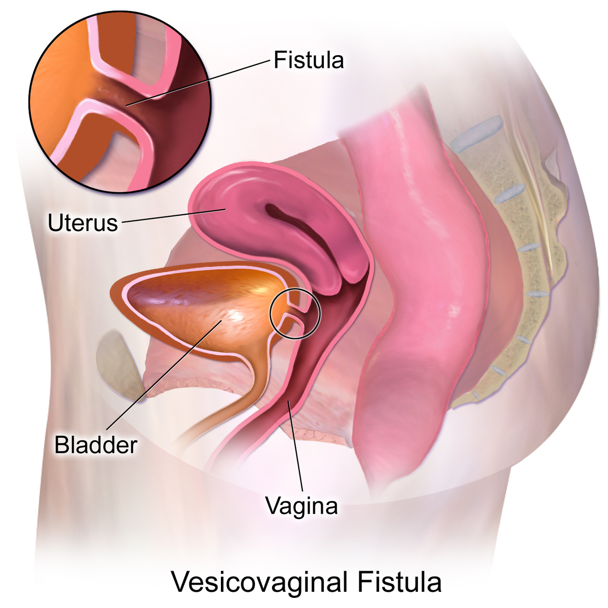 Difference Between Fistula and Shunt