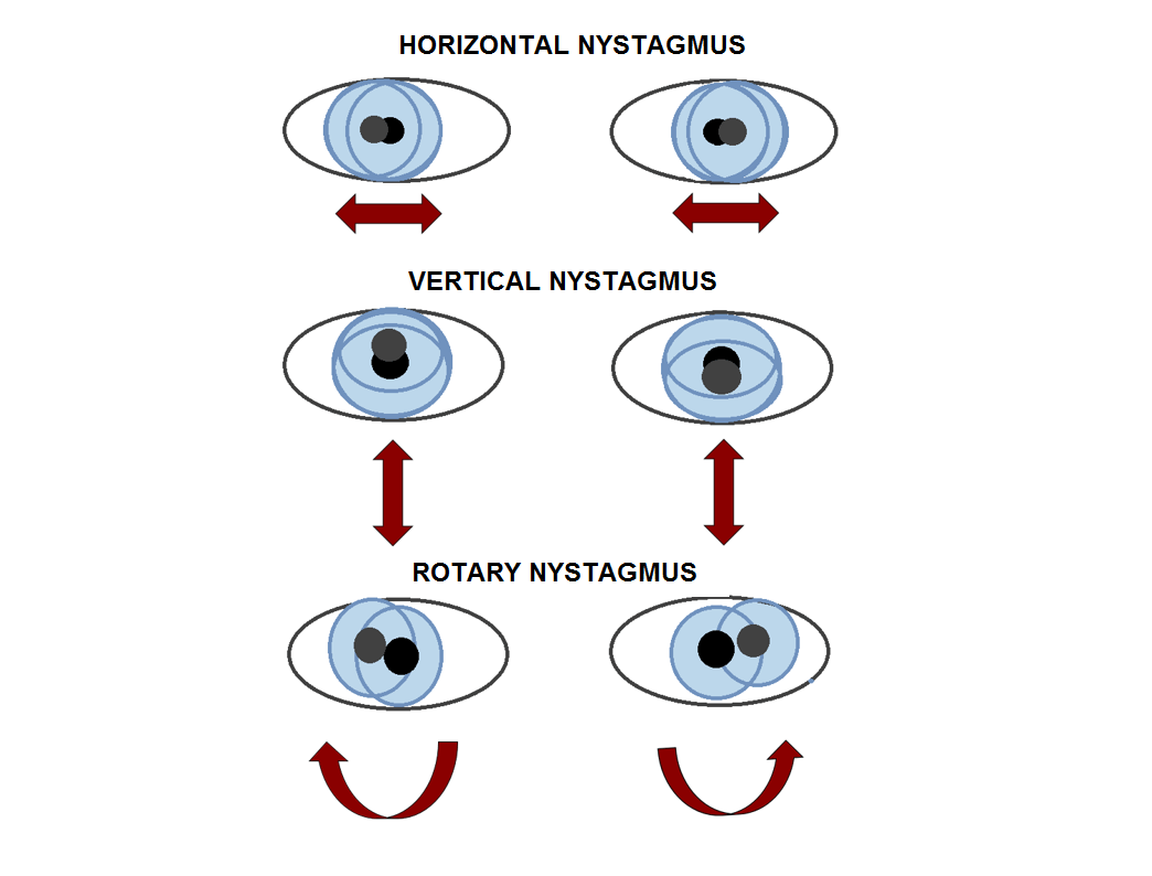 Difference Between Horizontal Nystagmus and Vertical Nystagmus