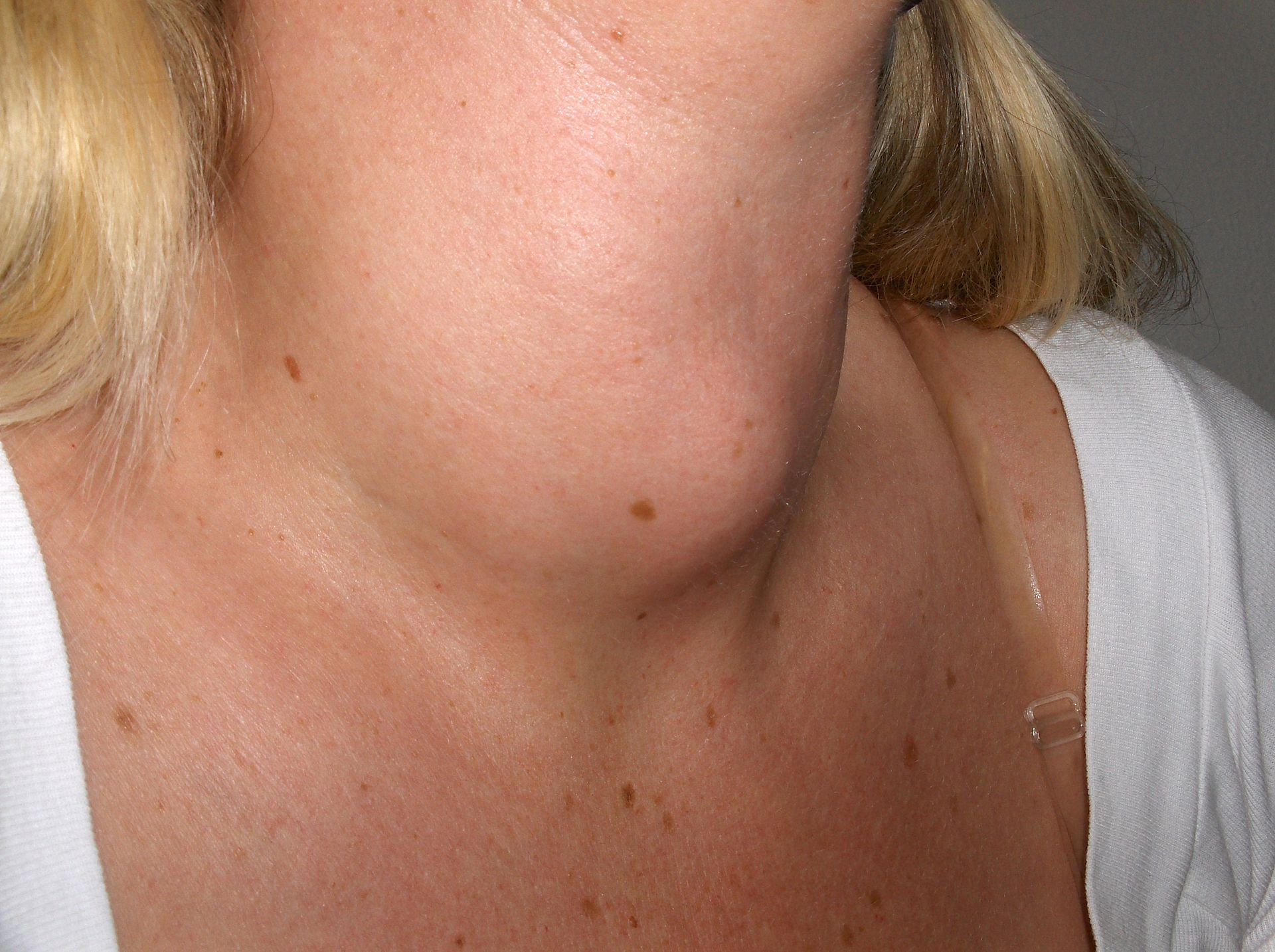 Difference Between Thyroid and Goiter