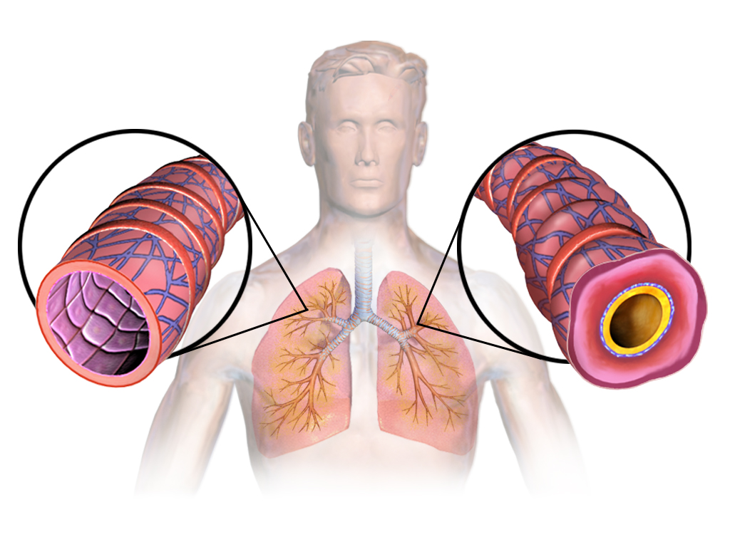 Difference Between Asthma and Reactive Airway Disease
