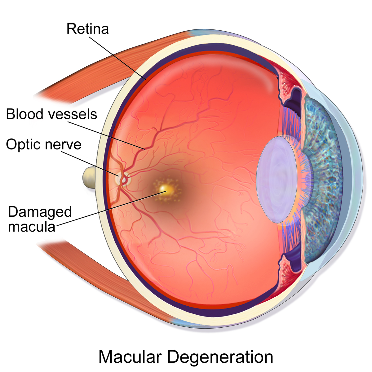 Difference Between Diabetic Retinopathy and Macular Degeneration