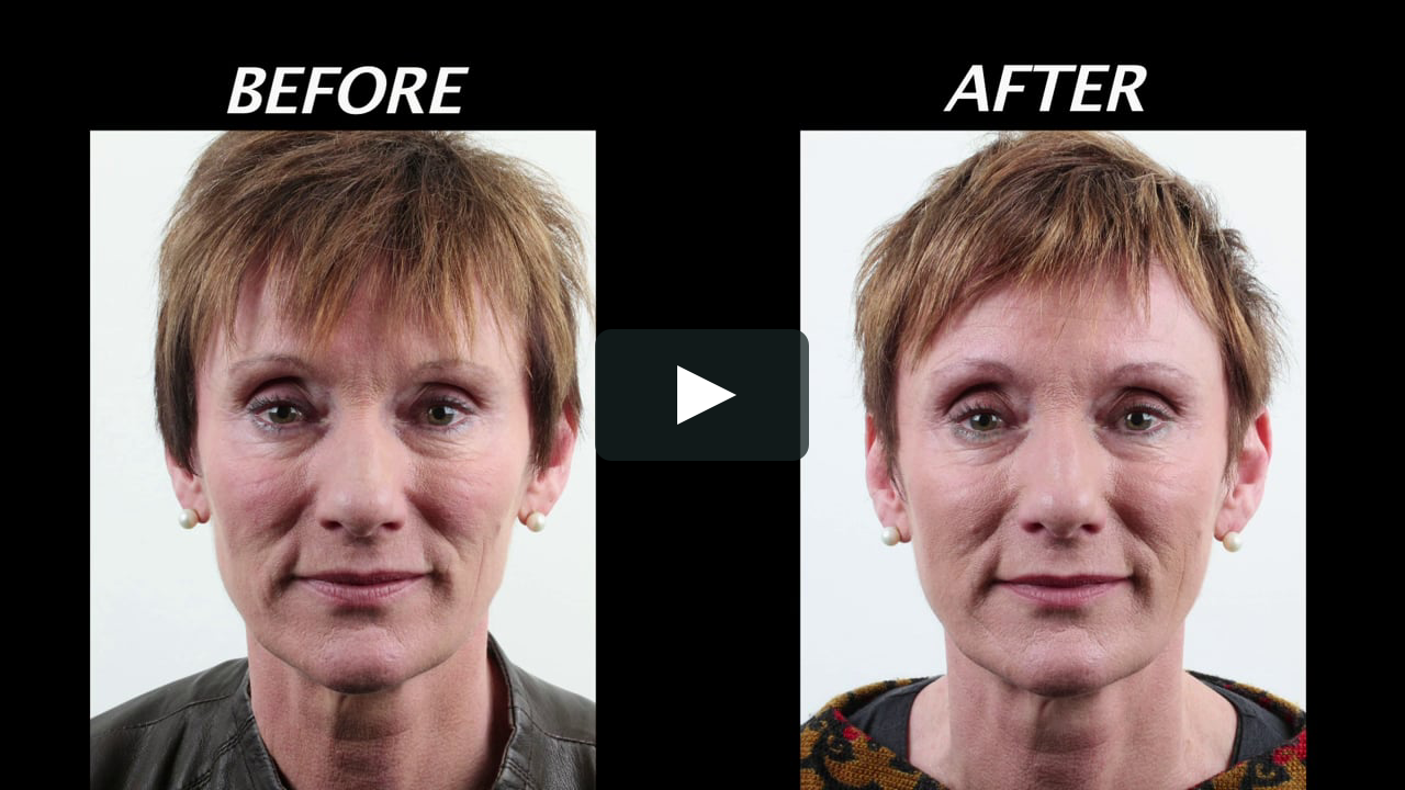 Difference Between Fillers and Botox