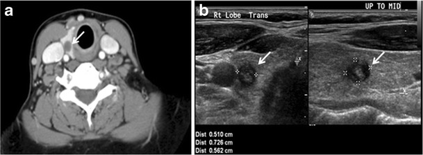Difference Between Thyroid Nodule and Cyst