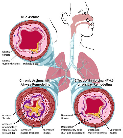Difference Between Acute and Chronic Asthma Exacerbation