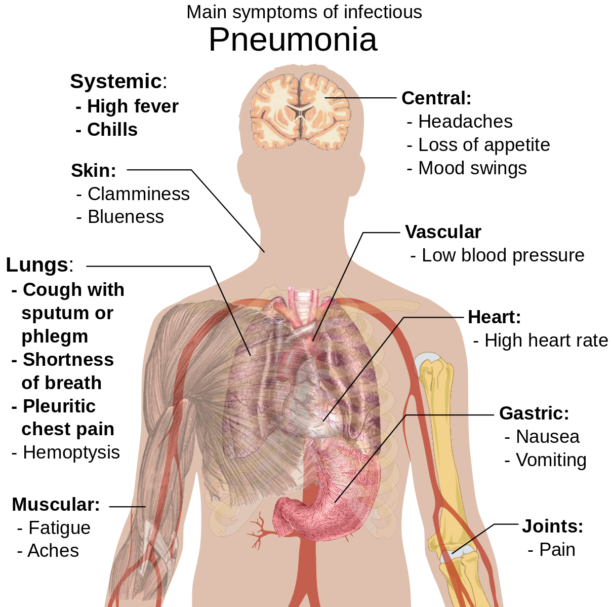 Difference Between Coronavirus and Pneumonia