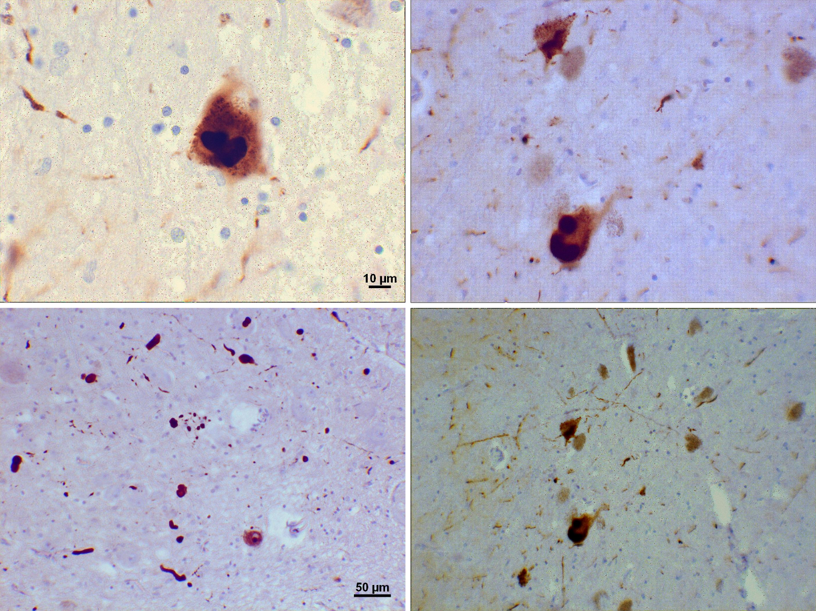 Difference Between Alzheimer's Disease and Dementia with Lewy Bodies