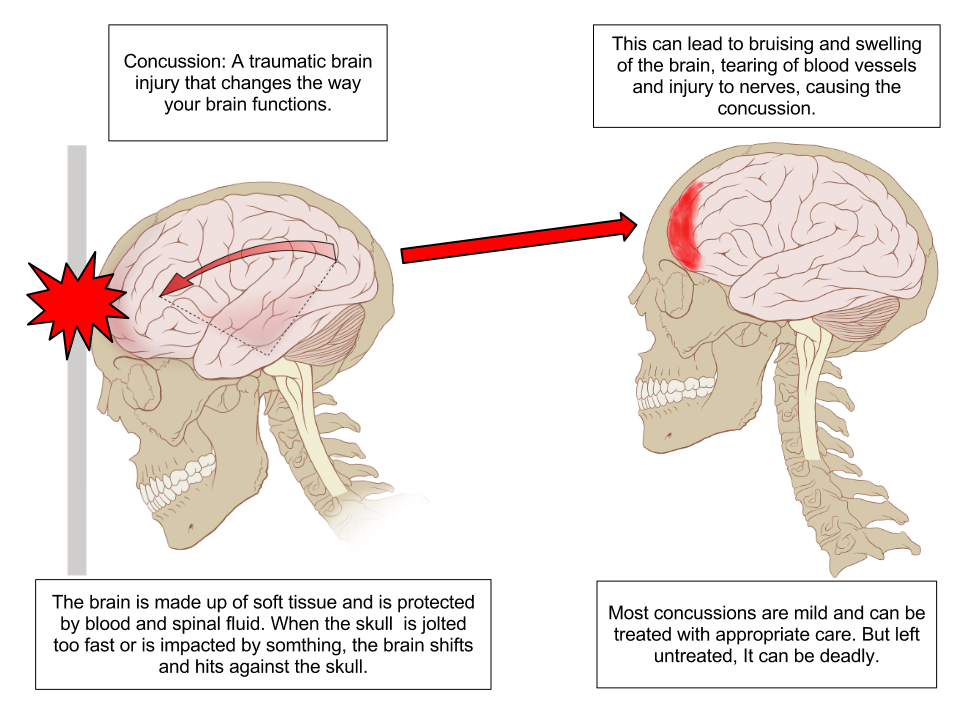 Difference Between Headache and Concussion