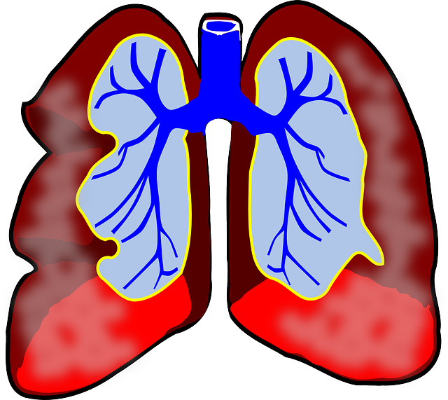Difference Between Pneumonia and Lung Infection.