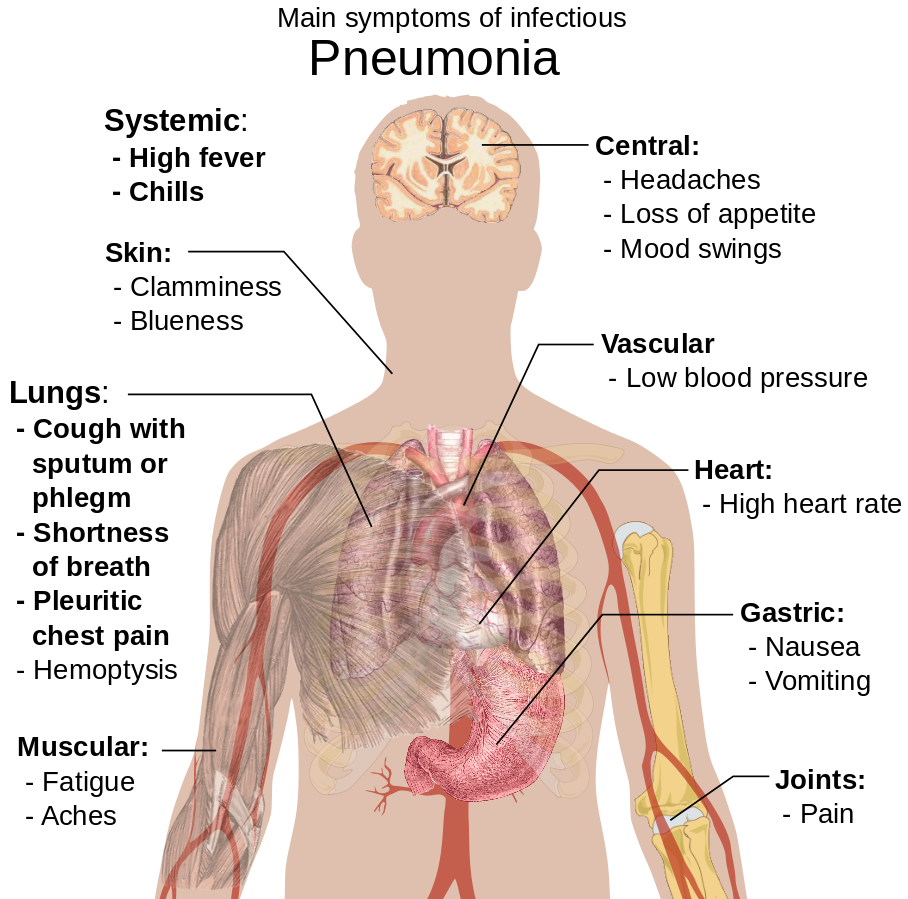 Difference Between Pneumonia and Lung Infection