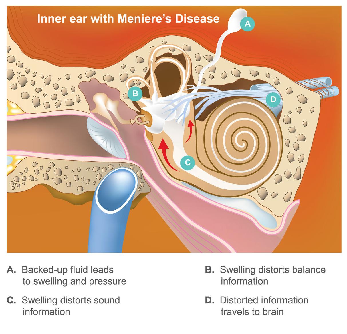 Difference Between Benign Paroxysmal Positional Vertigo (BPPV) and Meniere's Disease