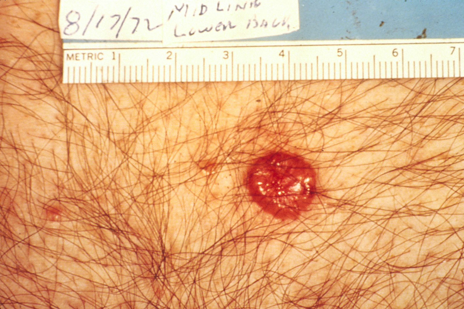 Difference Between Follicular Adenoma and Carcinoma