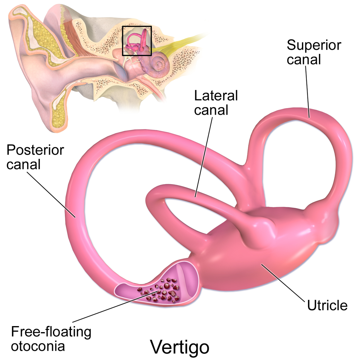 Difference Between Meniere's Disease and Vertigo