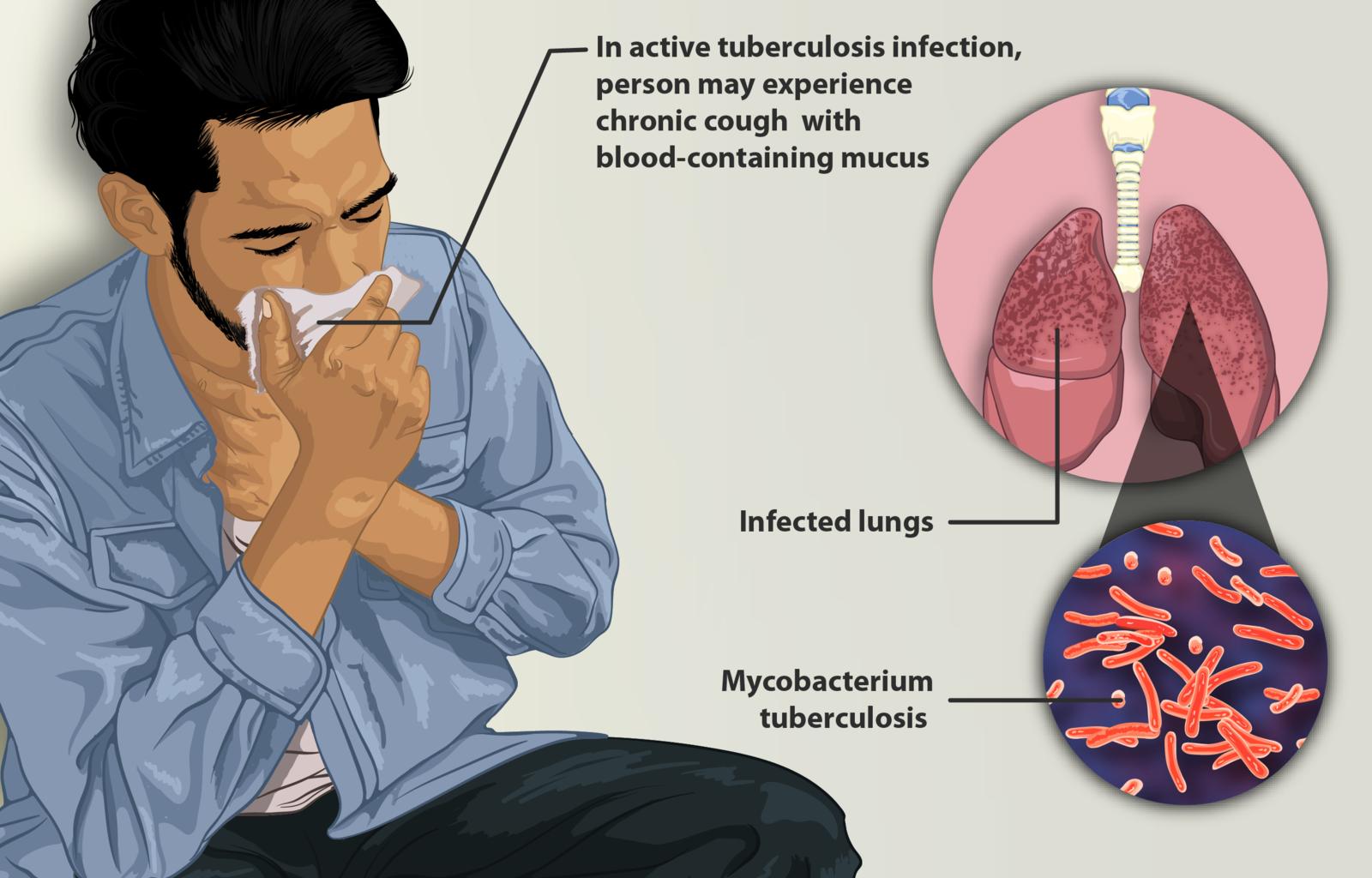 Difference Between Coronavirus and Tuberculosis