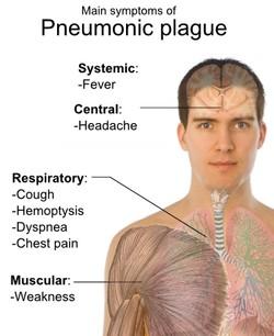 Difference Between Hemoptysis and Pseudo Hemoptysis