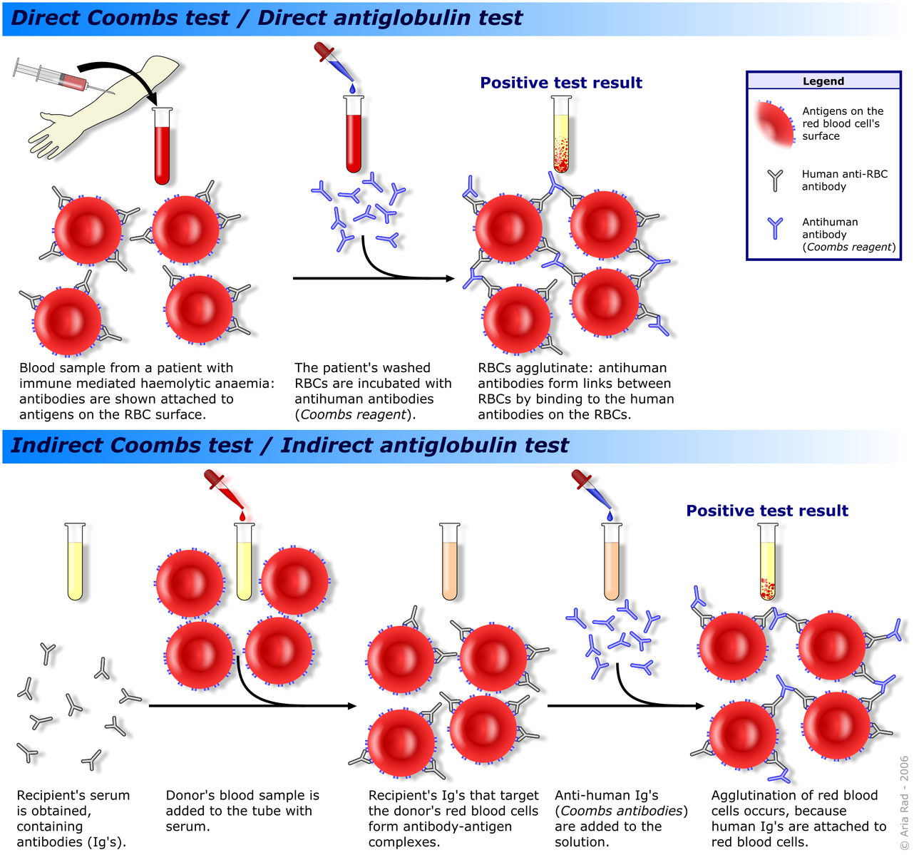 Difference Between Antibody and Antigen Test