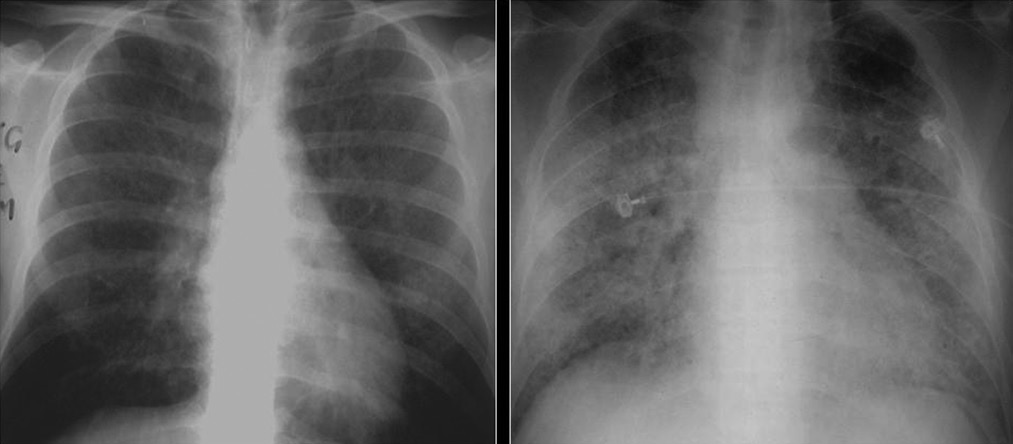 Difference Between Lung Infiltrate and Consolidation