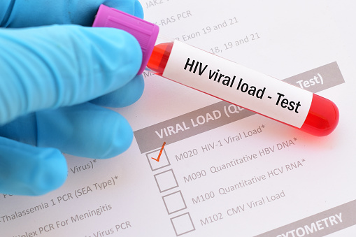Blood sample with requisition form for HIV viral load test