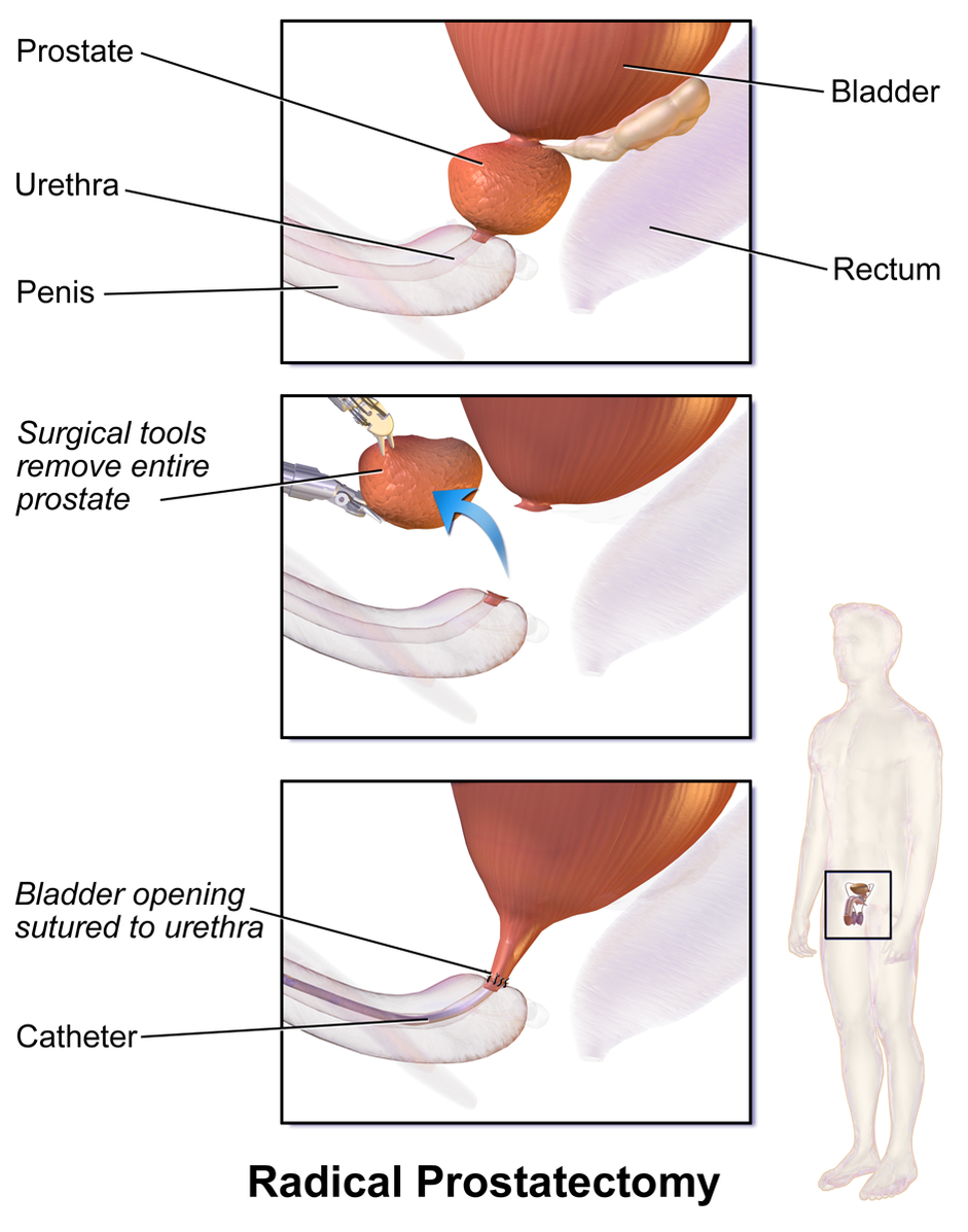 Difference Between Surgery and Radiation for Prostate Cancer
