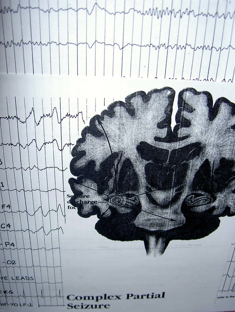 Difference Between Absence Seizure and Complex Partial Seizure