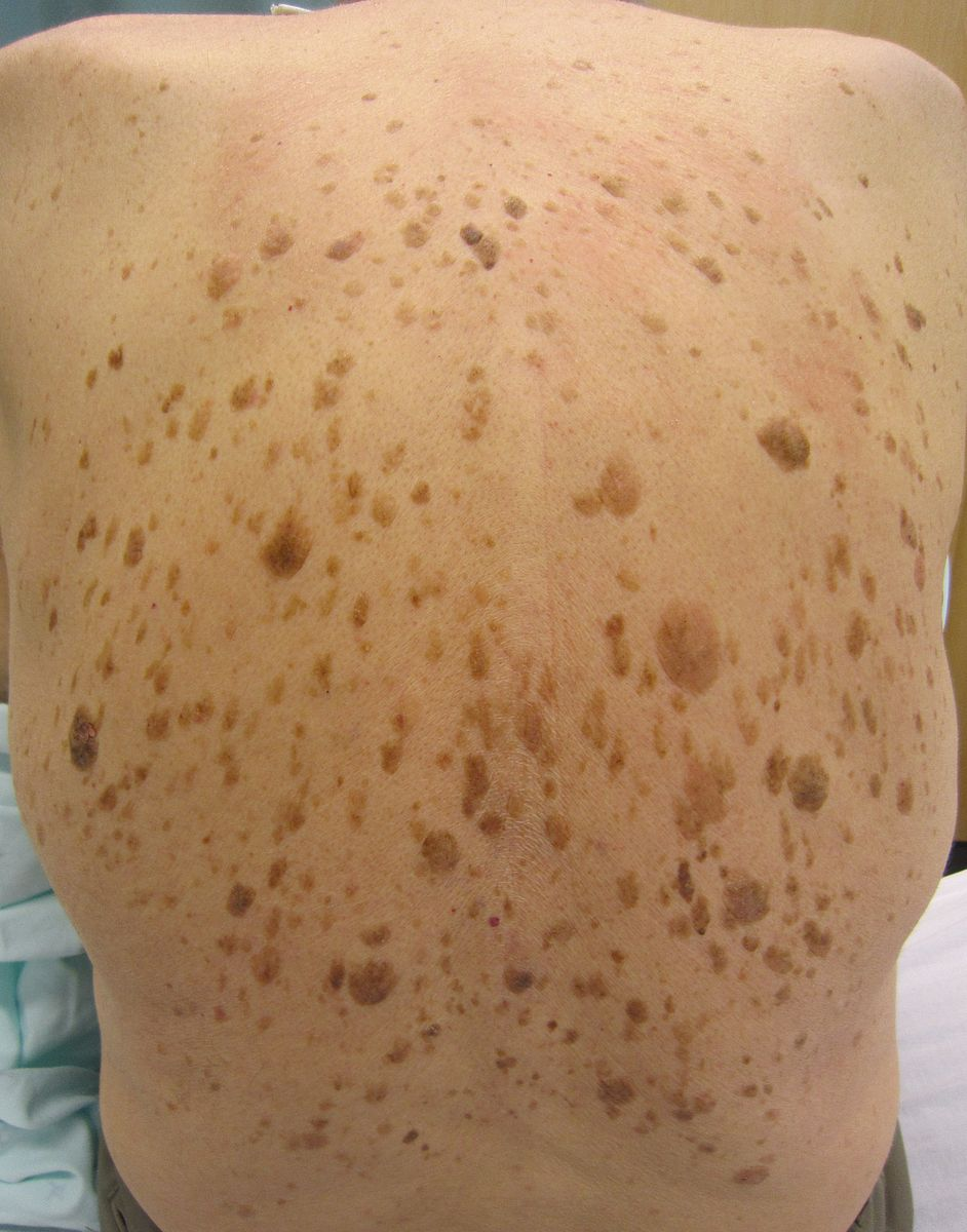 Difference Between Actinic Keratosis and Seborrheic Keratosis