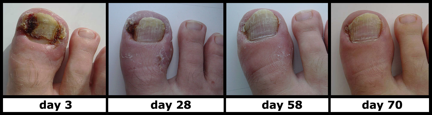 Difference Between Hangnail and Ingrown Nail