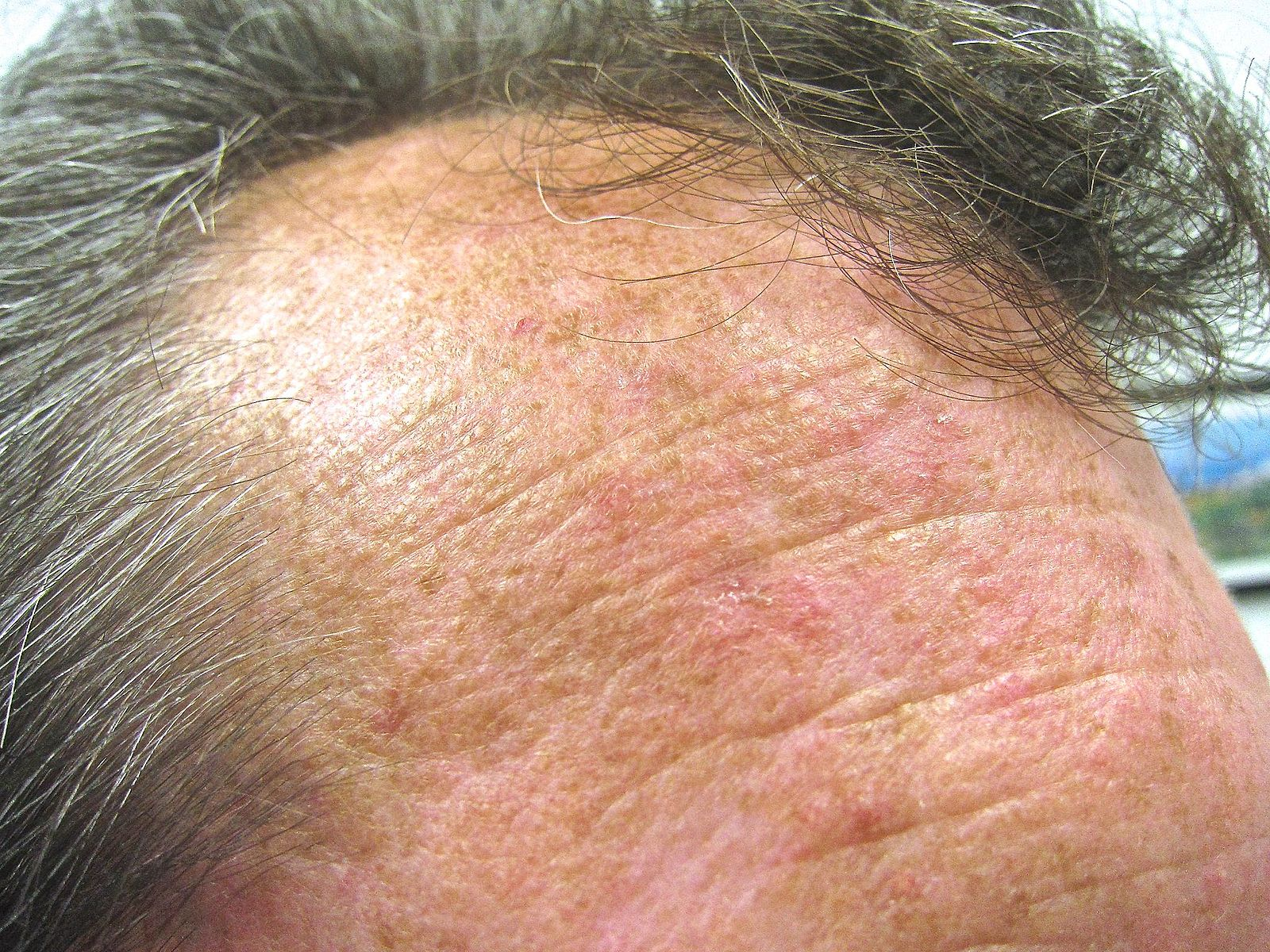 Difference Between Actinic Keratosis and Melanoma