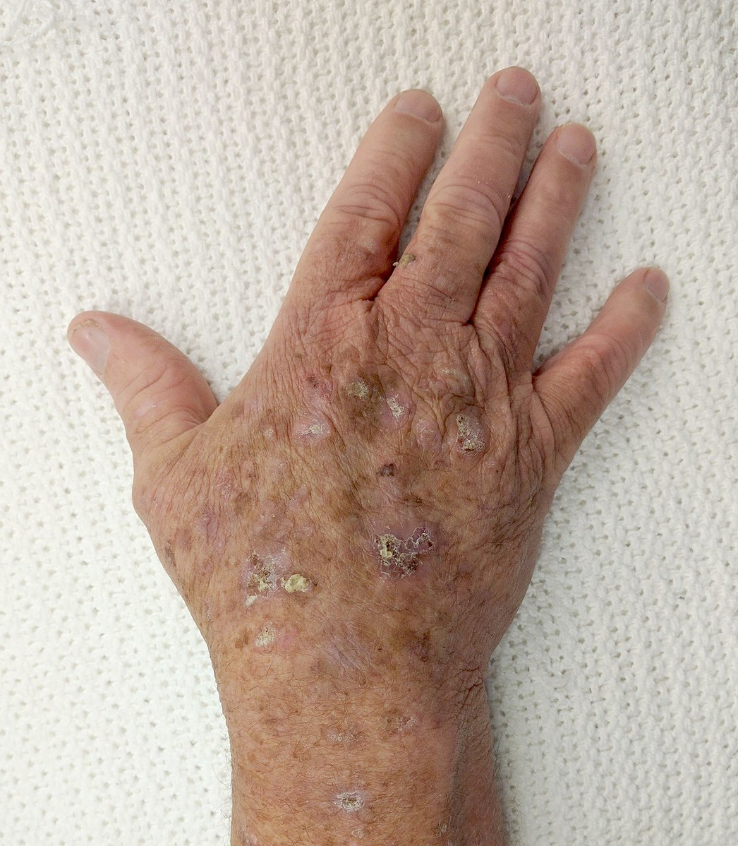 Difference Between Actinic Keratosis and Psoriasis