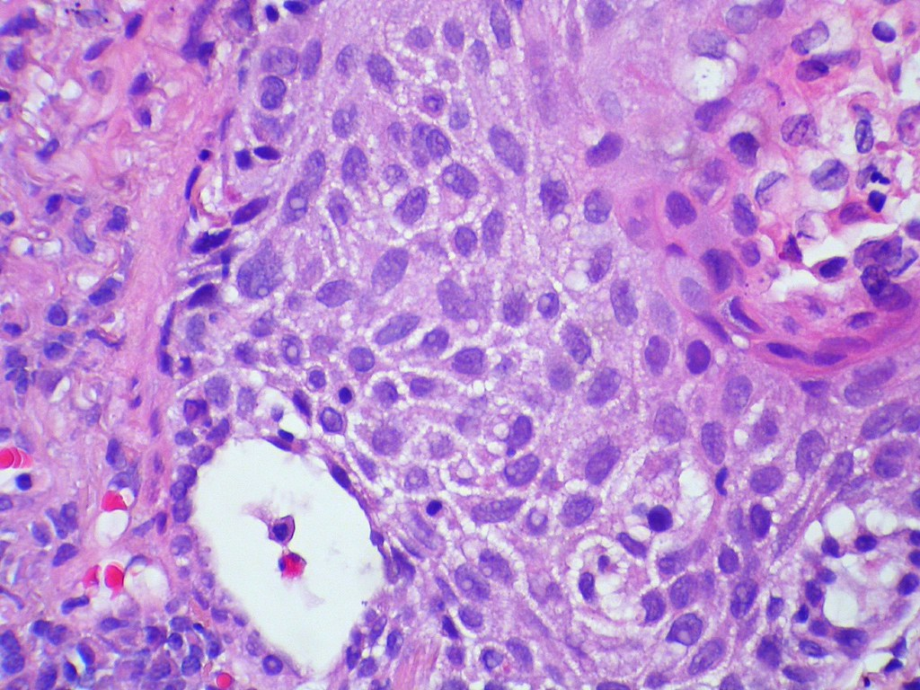 Difference Between Actinic Keratosis and Squamous Cell Carcinoma